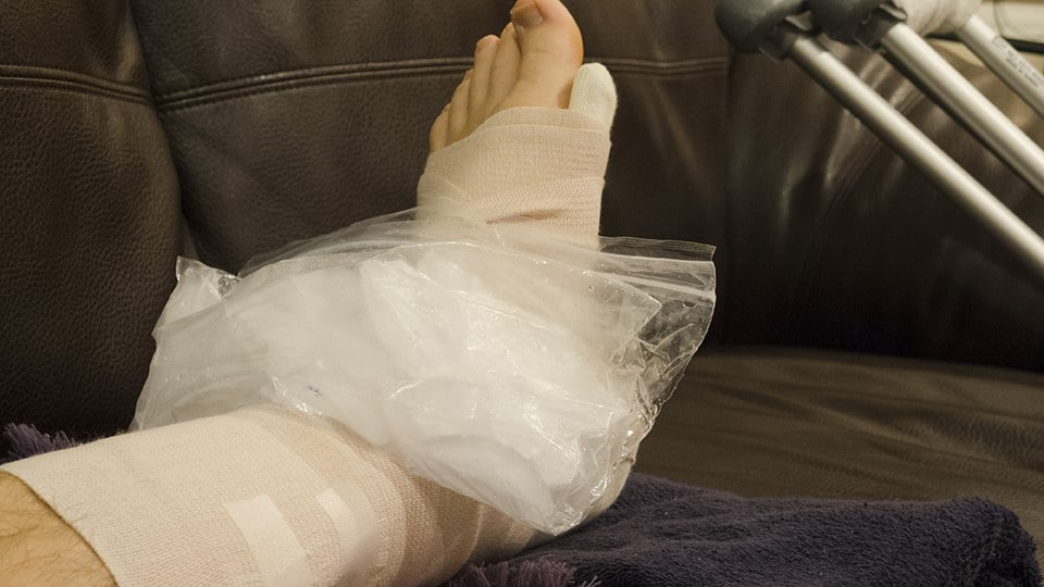 Don't Sweat It Use The R.I.C.E Method For A Foot Injury Swollen Foot